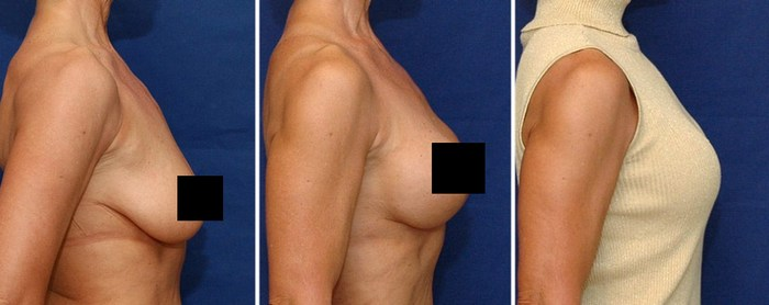 Хирургическое вмешательство при отвисании молочной железы