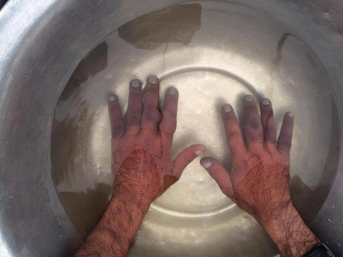 При обморожении пальцев рук помогают ванночки