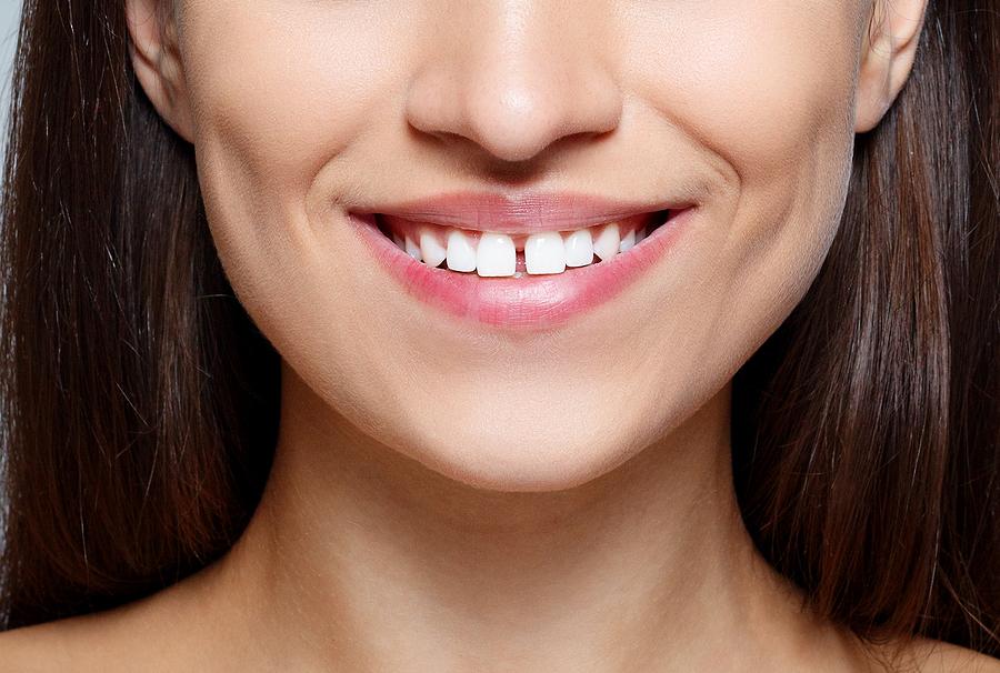 Люди со щербинкой между зубами - особенные